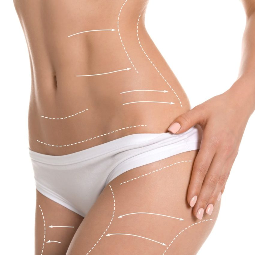 Young woman with marks for liposuction operation on white background. Cosmetic surgery